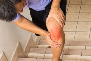 Matured man suffering acute knee joint pain climbing steps